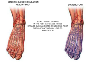 comparison diabetic foot