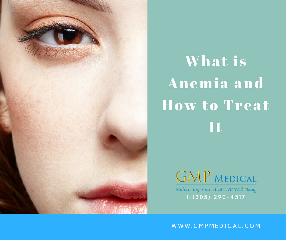 What is Anemia and How to Treat It