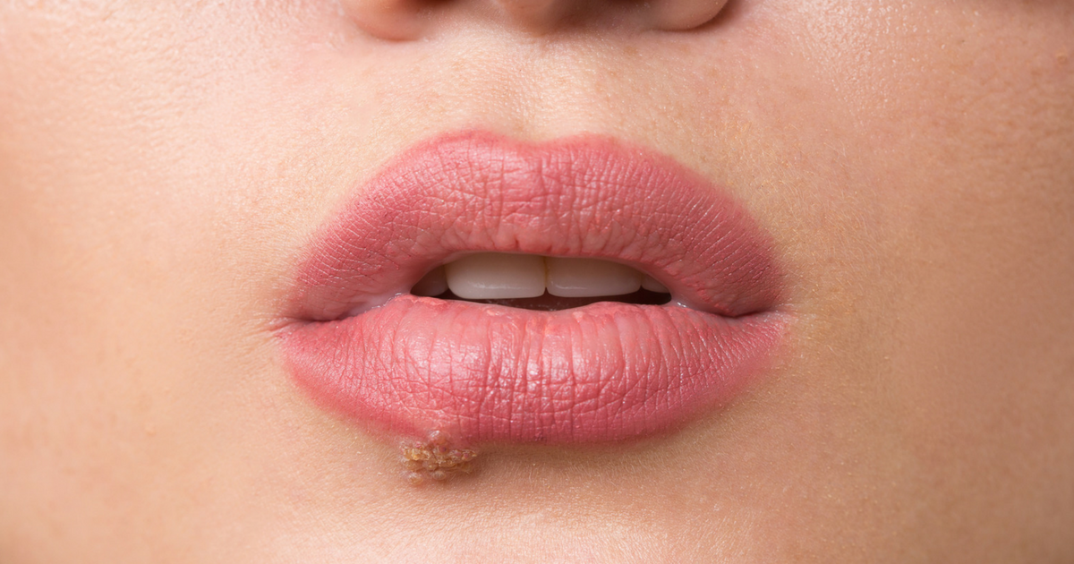 Cold Sore Versus Canker Sore: How to Get Rid Of Them | GMP