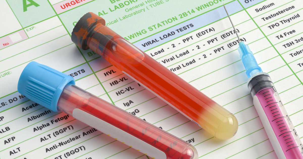 Blood Test Results Meaning