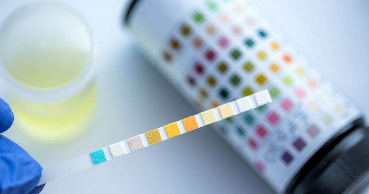 Dipstick Urinalysis Test