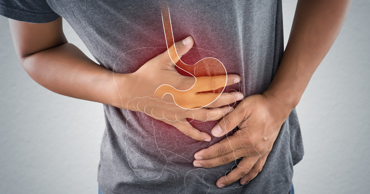 ibs signs and symptoms